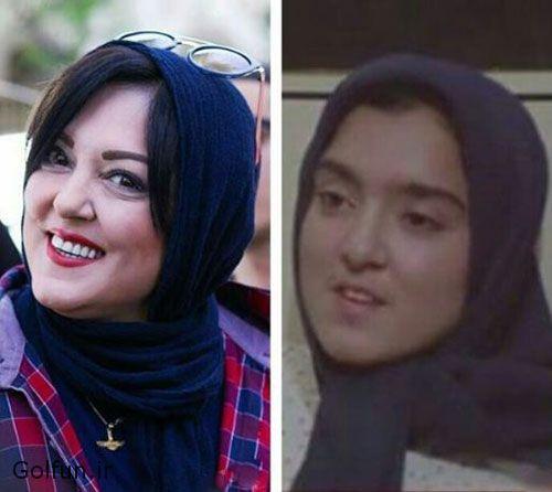 عکس پرستو گلستانی قبل عمل زیبایی و بعد از عمل زیبایی با تفاوت ۱۰۰ درصدی