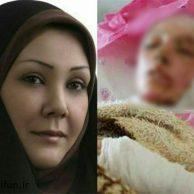 ماجرای اسیدپاشی روی صورت رویا دیباوند کاندیدای شورای اسلامی شهر ارومیه
