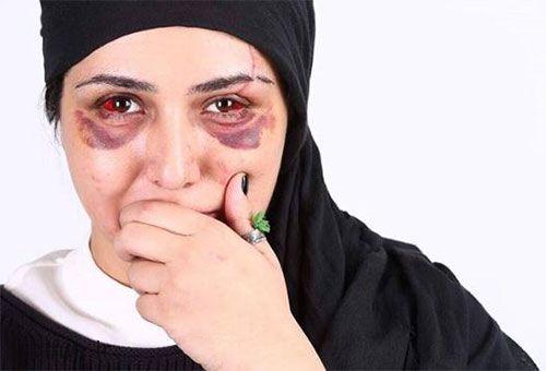 عکس دلخراش باران کوثری بازیگر ایرانی بعد از تصادف شدید در شب تولدش
